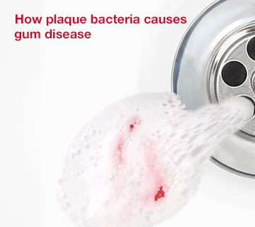 Corsodyl - How plaque bacteria causes gum disease