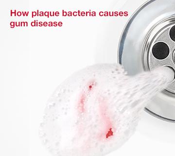 Corsodyl - How plaque bacteria causes gum disease