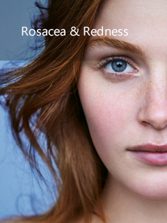La Roche-Posay Rosacea & Redness