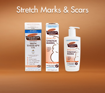 Palmers Stretch Marks and Scars