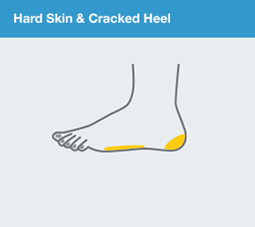 Scholl Hard Skin & Cracked Heel