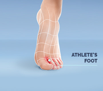 Scholl Athletes Foot
