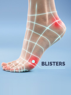 Scholl Blisters