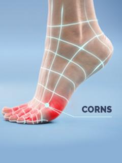 Scholl Corns