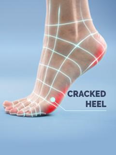 Scholl Cracked Heel