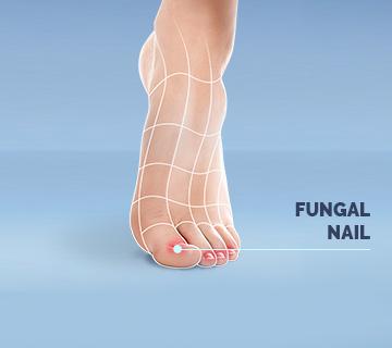 Scholl Fungal Nail