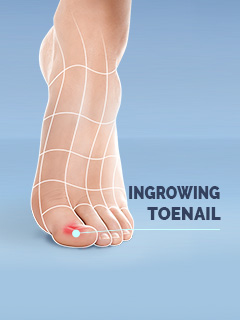 Scholl Ingrowing Toenail