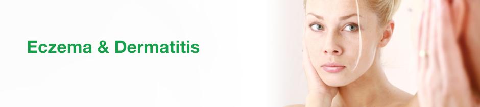 Eczema and Dermatitis